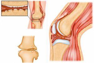 Суставы: симптомы и лечение