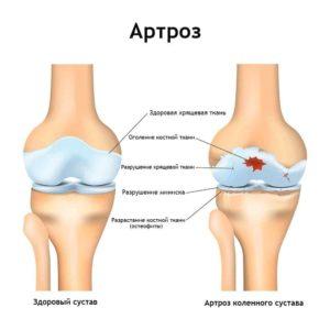 Артроз коленного сустава: лечение